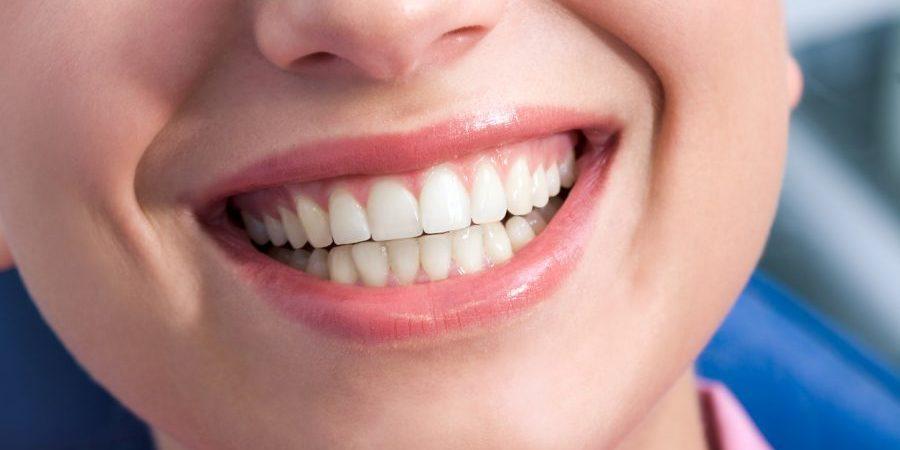 german dental implant brands
