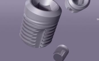 dental implant manufacturers